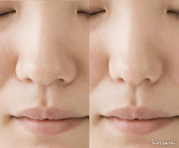 鼻翼縮小整形(小鼻整形)後のバランス