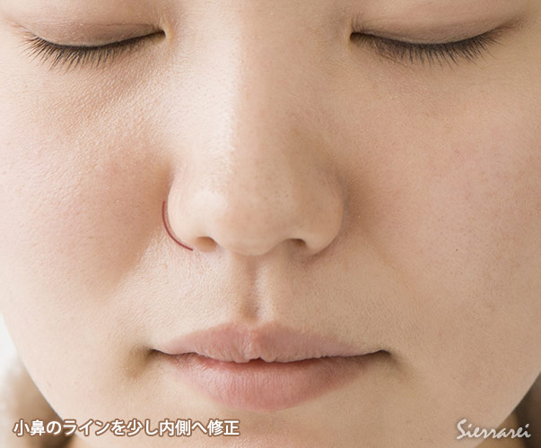 Photoshopでの鼻翼縮小整形(小鼻整形)シミュレーション