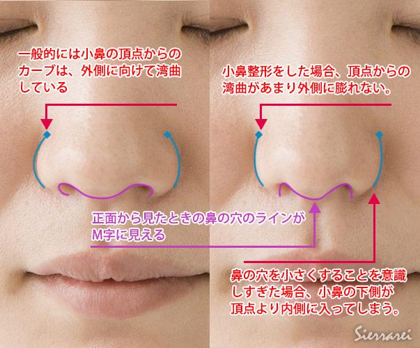 鼻翼縮小整形(小鼻整形)した場合の小鼻のライン