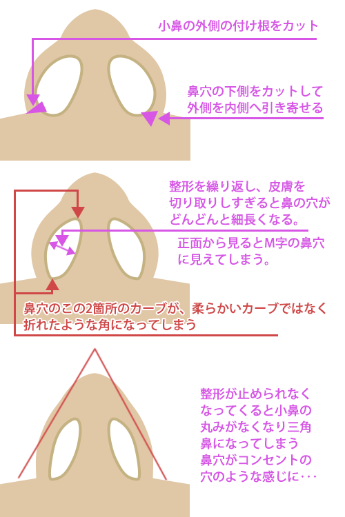 鼻翼縮小手術(小鼻手術)やりすぎ
